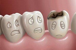 Почему возникает кариес? Причины и стоимость лечения кариеса недорого