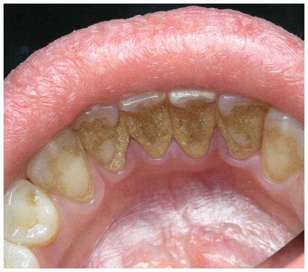 Камень зубной