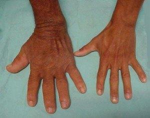 Увеличение частей тела при акромегалии