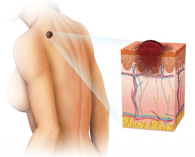 Рак кожи лечение причины