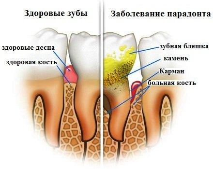 obrazovanie-zubnogo-kamnya