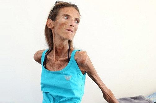 vidi-anoreksii