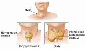 Отличие здоровой щитовидной железы и пораженной зобом.