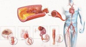 Формы атеросклероза