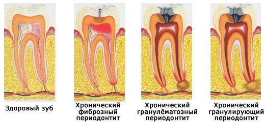 Как возникает и развивается периодонтит