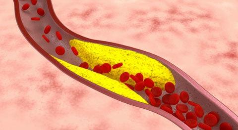 coronary_heart_disease_1