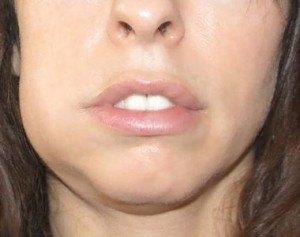 Отек (флюс) при периостите на нижней челюсти