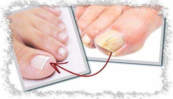 Избавление от грибка ногтей