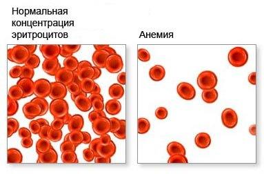 Отличие здоровой крови и при анемии