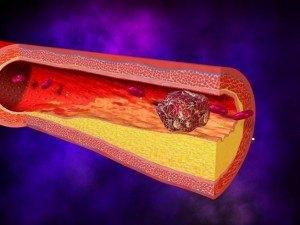 Тромб как причина пурпуры