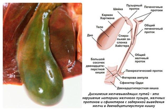 наличие паразитов в организме