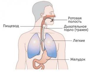 При каких заболеваниях проявляется симптом