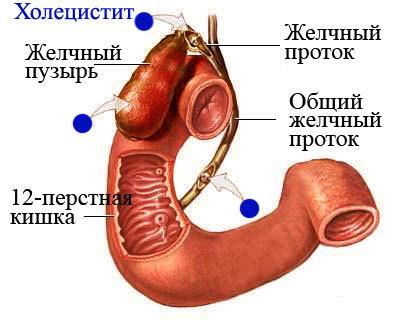 holecistit-beskamennyj-hronicheskij-2