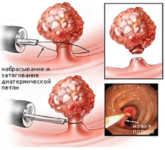 Как лечить папилломы кишечника в домашних условиях