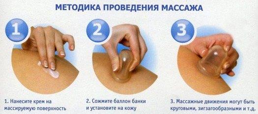 Проведение баночного массажа