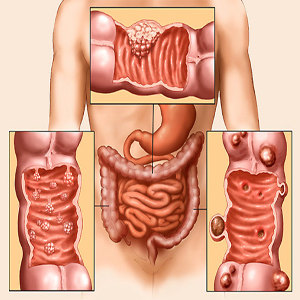 Полипы в толстой кишке симптомы и лечение