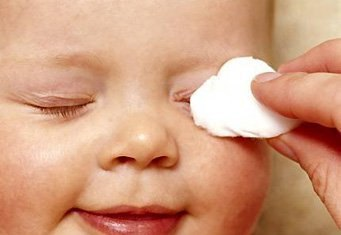 Протирание глаз отваром ромашки