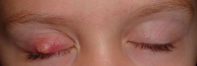 Симптомы ячменя у детей
