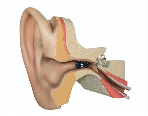 Внутриканальный слуховой аппарат