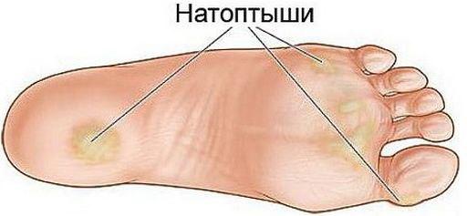 Расположение натоптышей на стопе
