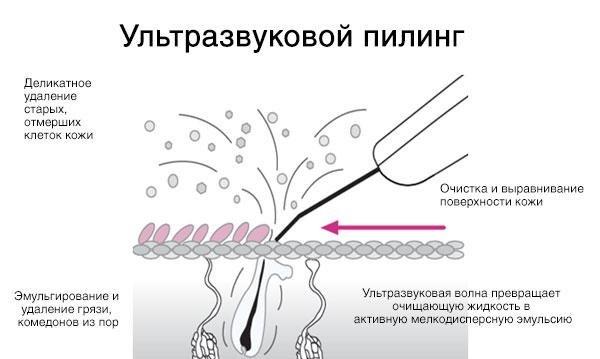 очистка лица от черных точек в москве