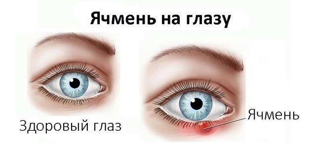 Глаз: здоровый и с ячменем