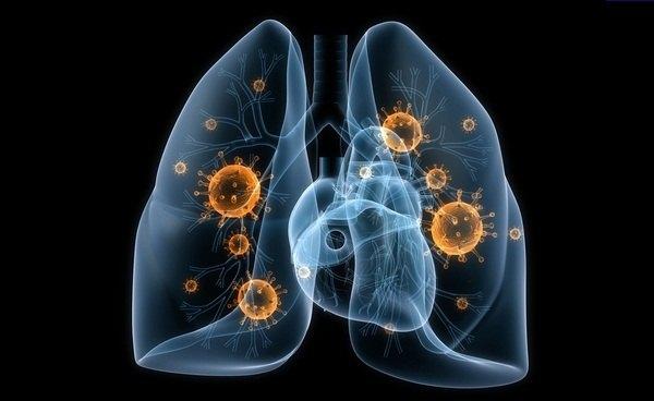 Бактерии, вирусы, провоцирующие пневмонию