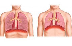 Увеличение легких при эмфиземе