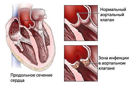 Поражение сердечных клапанов эндокардитом