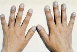Утолщение пальцев при эндокардите