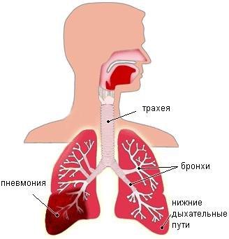 Как выглядит пневмония