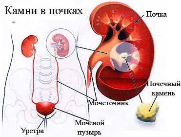 как вылечить холестерин в крови народными средствами
