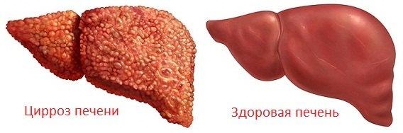 Здоровая печень и с циррозом