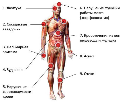 Симптомы цирроза