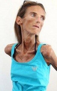 mikroflora-kishechnika-vlijaniet-na-ljudej-s-anoreksiej