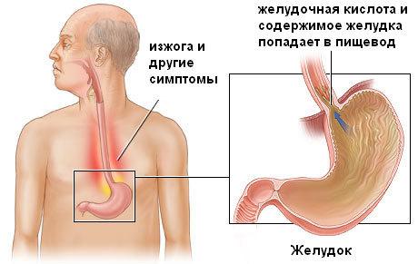 Изжога, как симптом эрозии пищевода