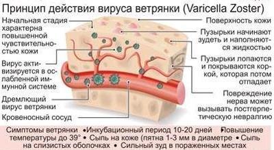 Вирус ветрянки