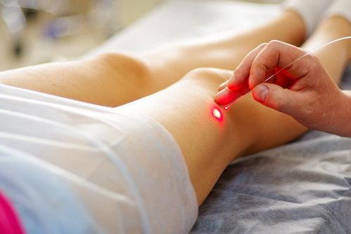 Лечение варикоза при буруемнности