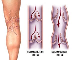 Болезни, которые лечит флеболог