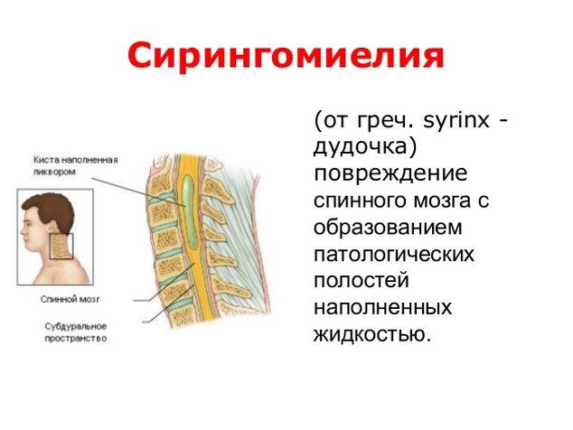 Что такое сирингомиелия