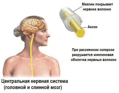 Склеротические бляшки