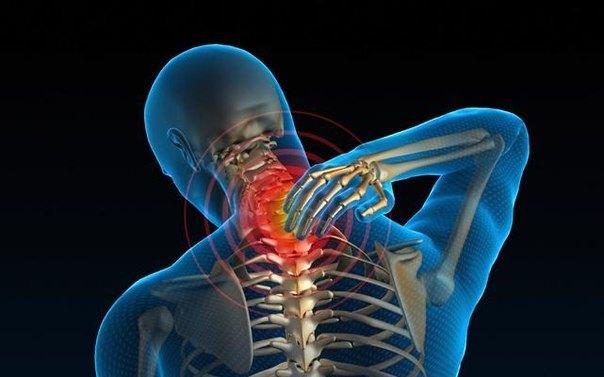 Боль при сирингомиелии