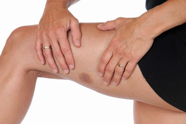 Тромбоцитопения причины и лечение у взрослых