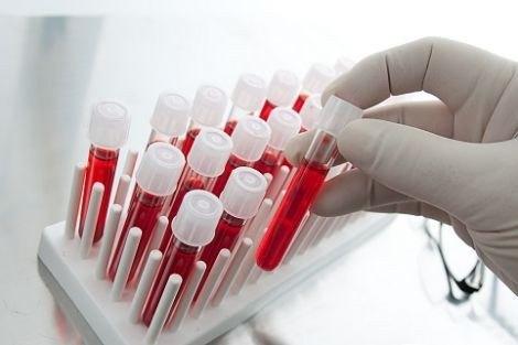 Лабораторный анализ крови