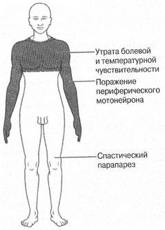 Проявление сирингомиелии