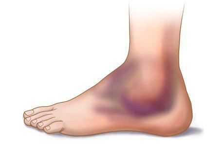 Кровоизлияние в суставы