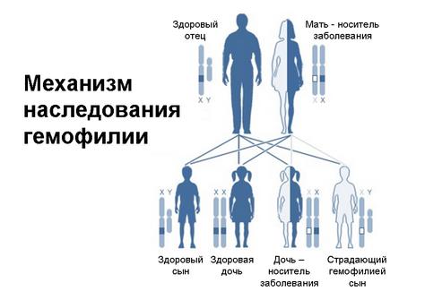 Наследственная коагулопатия - гемофилия