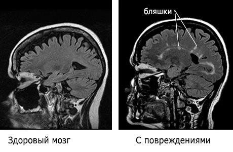 Бляшки в головном мозге