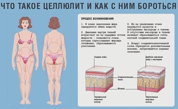 Фиброзный целлюлит лечение в домашних условиях