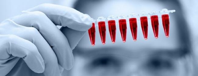 общий-анализ-крови-1